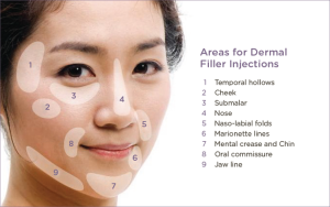 Dermal Filler suggested areas.
