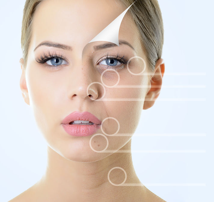 Specialities_Ultherapy_